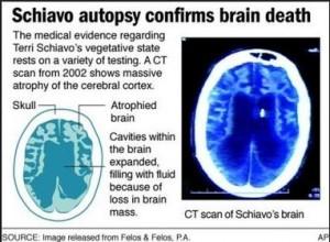 Schiavo Autopsy Confirms Brain Death
